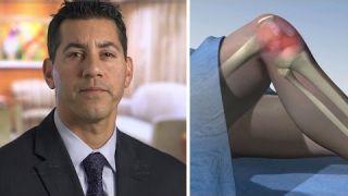 Bone Marrow Stem Cell Treatment (BMAC) for Knee Osteoarthritis - Mayo Clinic